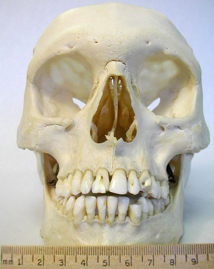 Human Skull Bumps http://courses.washington.edu/chordate/453photos/skull_photos/amniote_skull_photos2.htm