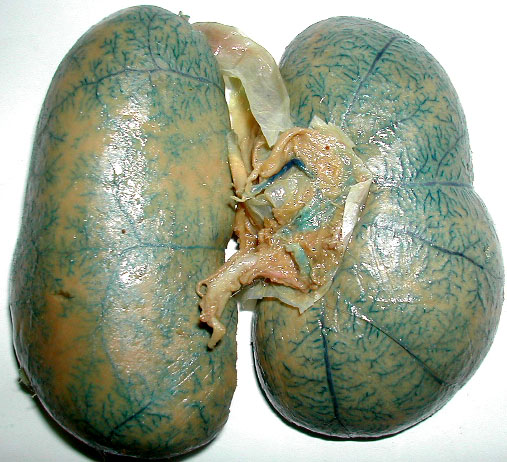 Double Kidney On One Side