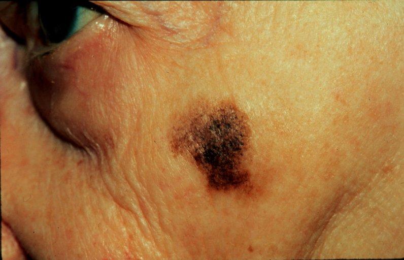 Lentigo maligna melanoma  LMM   Lentigo Maligna Melanoma Foot