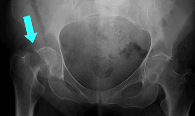 Clinical featuresX Ray Femur Fracture