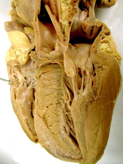 heart: Sheep Heart Unlabeled