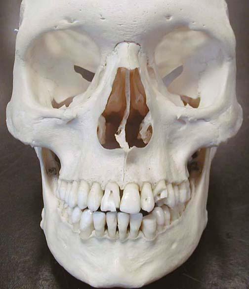 Hipple blog: human teeth